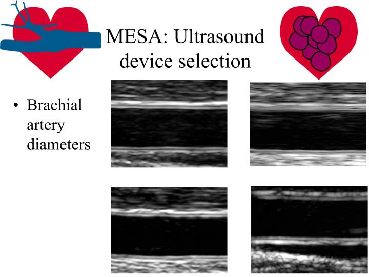 MESA: Ultrasound device selection