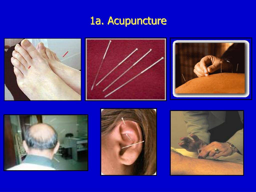 1a. Acupuncture