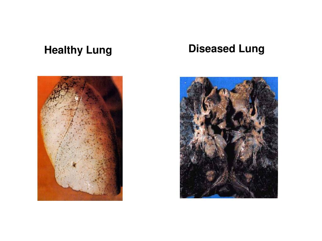 Diseased Lung