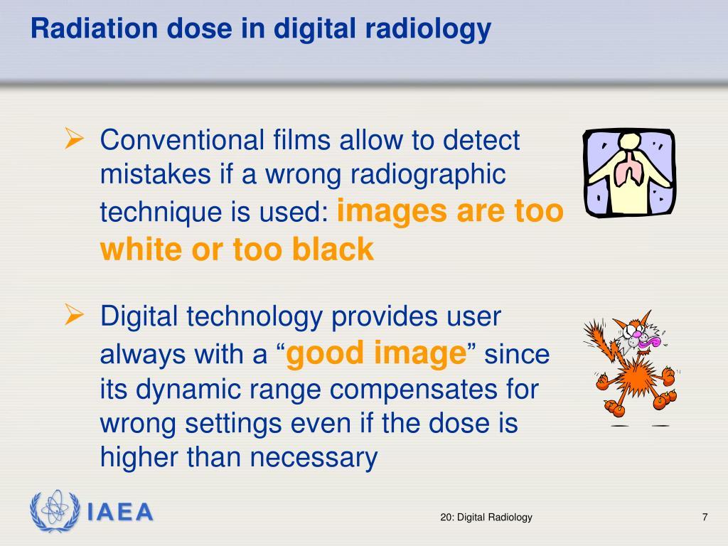 Radiation dose in digital radiology