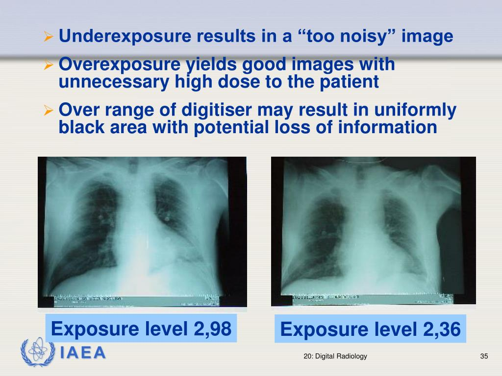 """Underexposure results in a """"too noisy"""" image"""