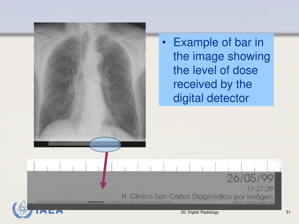 Example of bar in the image showing the level of dose received by the digital detector
