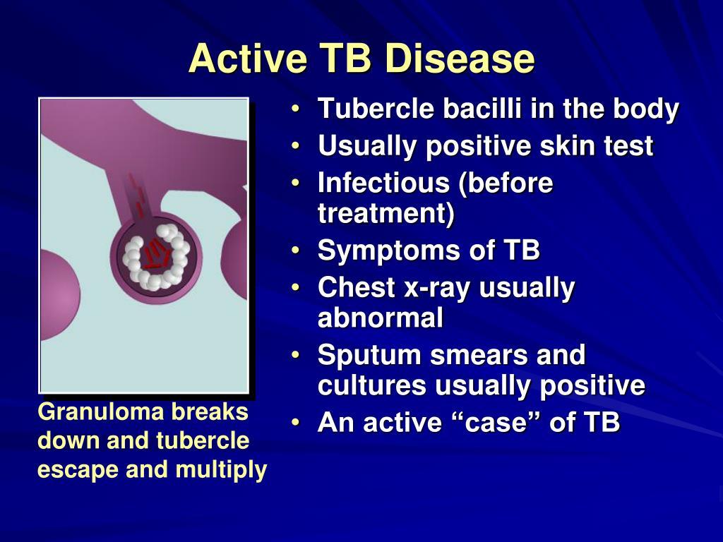 Active TB Disease