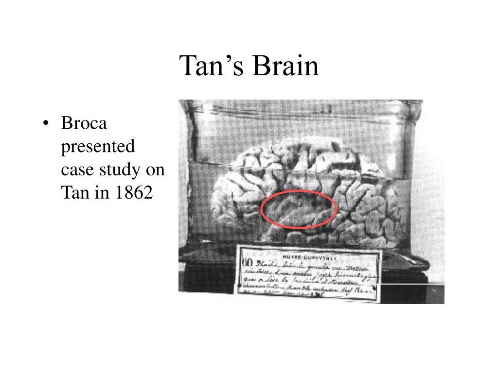 Tan's Brain