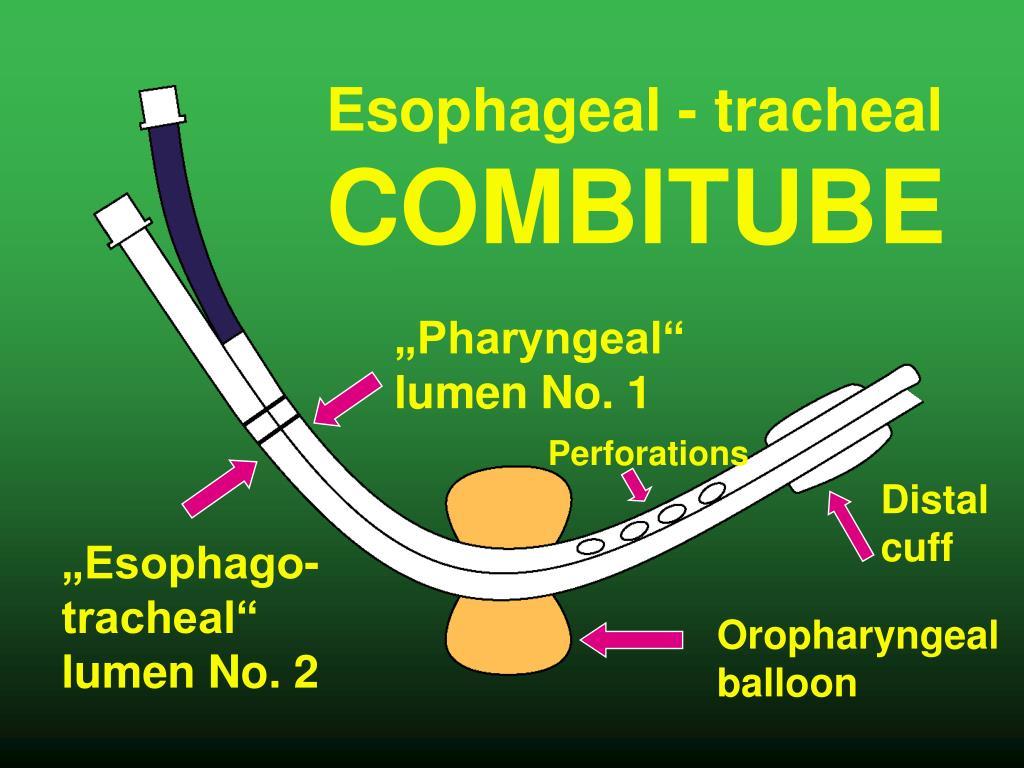 Esophageal - tracheal