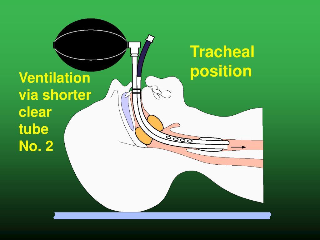 Tracheal