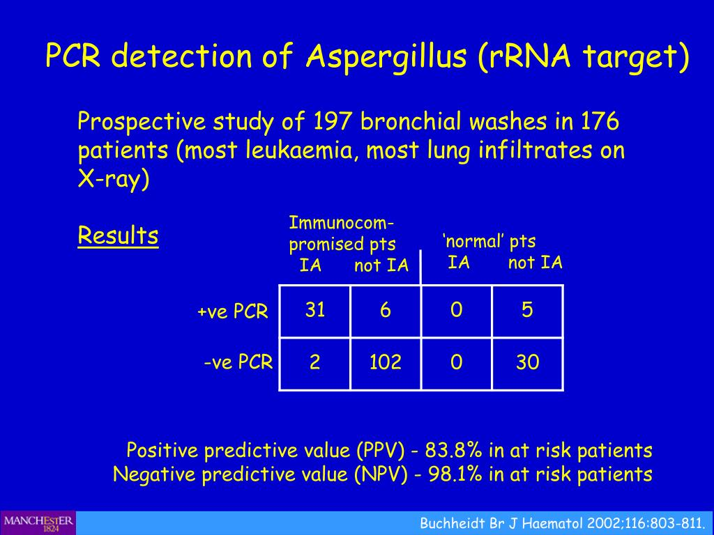 PCR detection of Aspergillus (rRNA target)