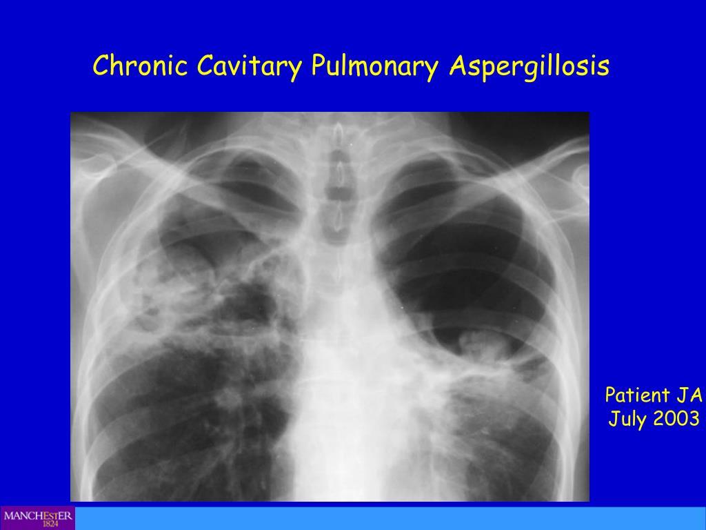 Chronic Cavitary Pulmonary Aspergillosis