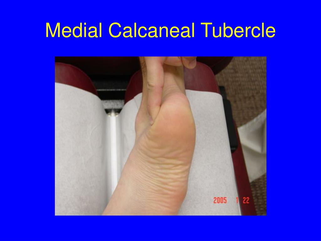 PPT - Foot Surface Anatomy PowerPoint Presentation - ID:288077
