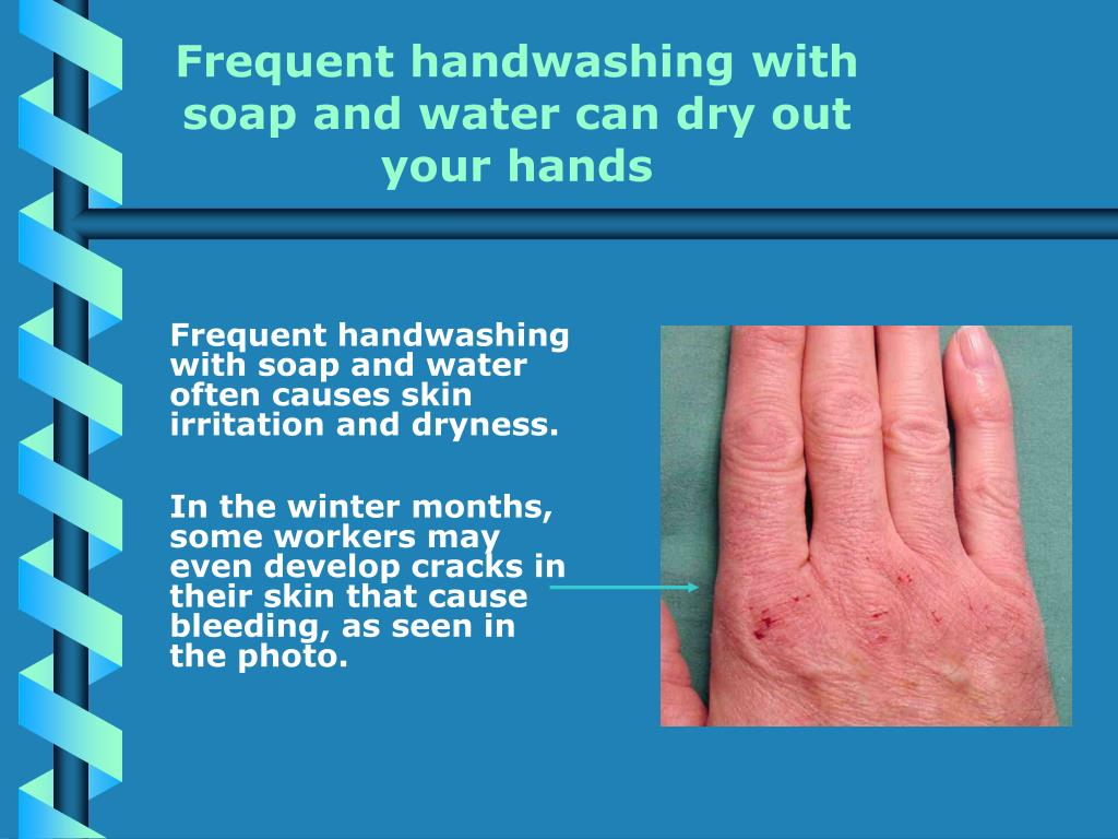 Frequent handwashing with soap and water can dry out your hands
