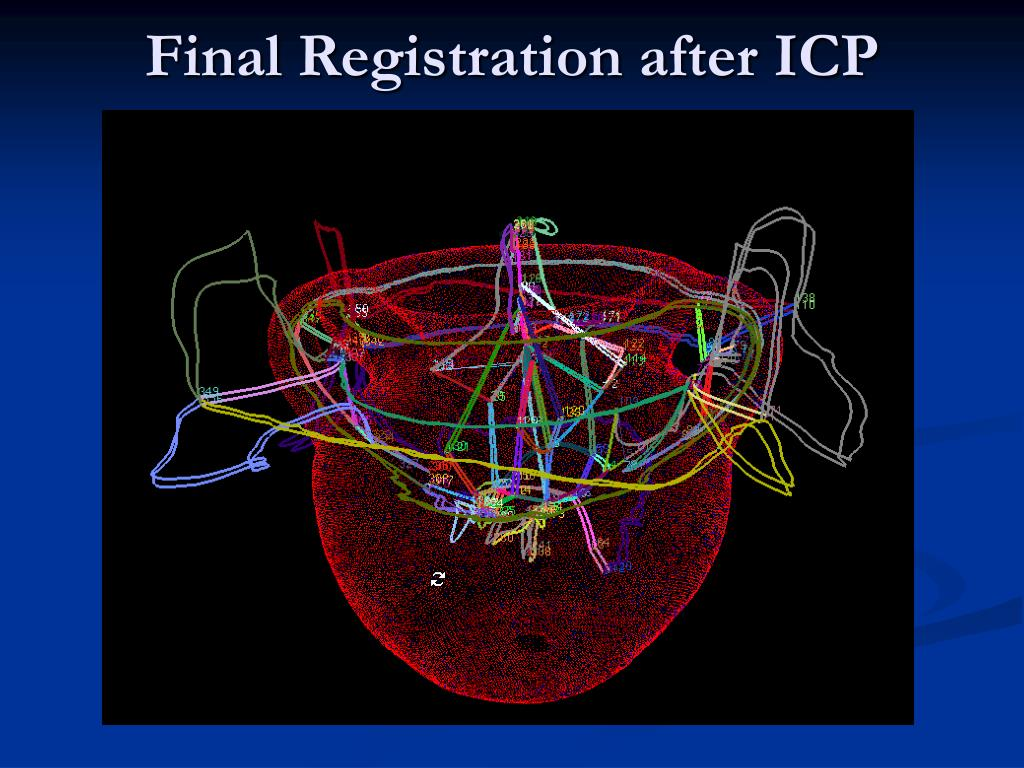 Final Registration after ICP