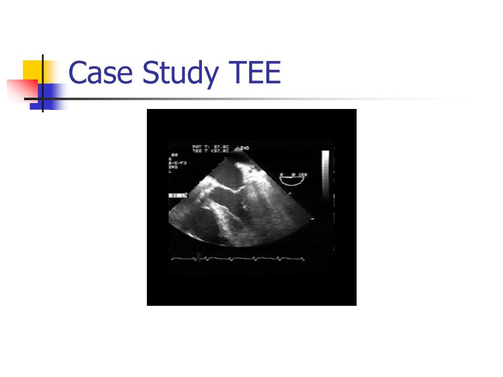 Case Study TEE