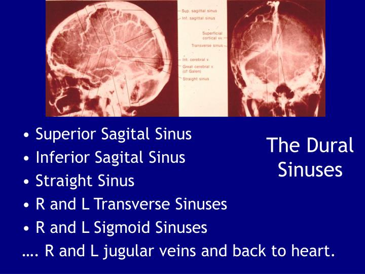 The Dural Sinuses