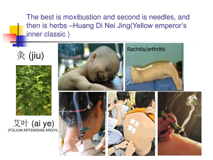 The best is moxibustion and second is needles, and then is herbs –Huang Di Nei Jing(Yellow emperor...