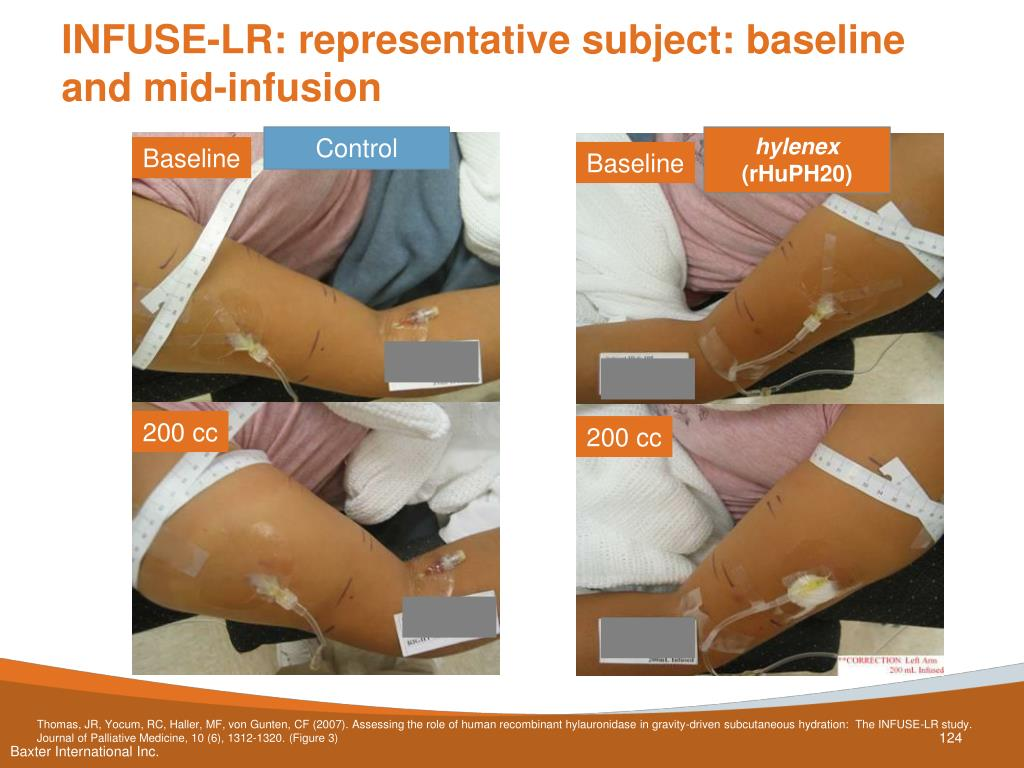 INFUSE-LR: representative subject: baseline and mid-infusion