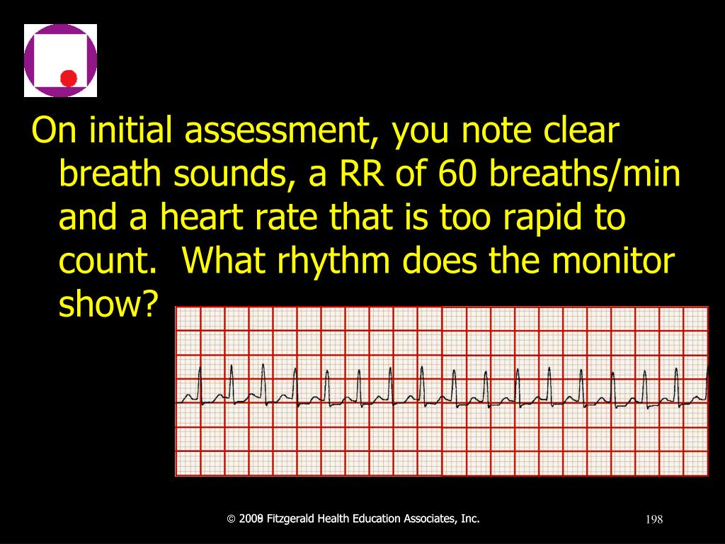 On initial assessment, you note clear breath sounds, a RR of 60 breaths/min and a heart rate that is too rapid to count.  What rhythm does the monitor show?