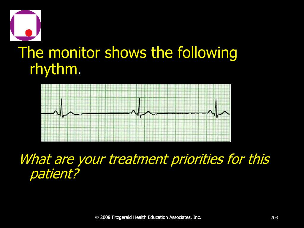 The monitor shows the following rhythm