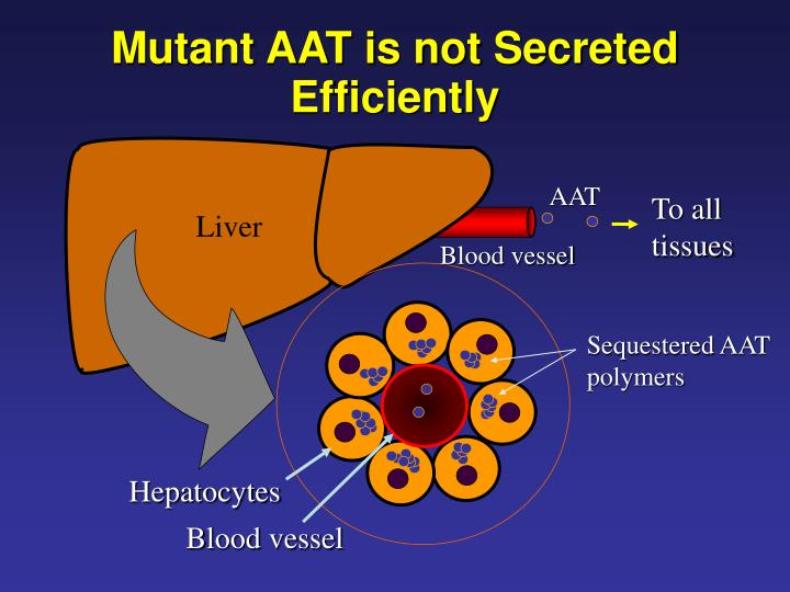 Mutant AAT is not Secreted Efficiently