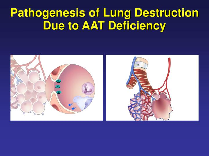 Pathogenesis of Lung Destruction Due to AAT Deficiency