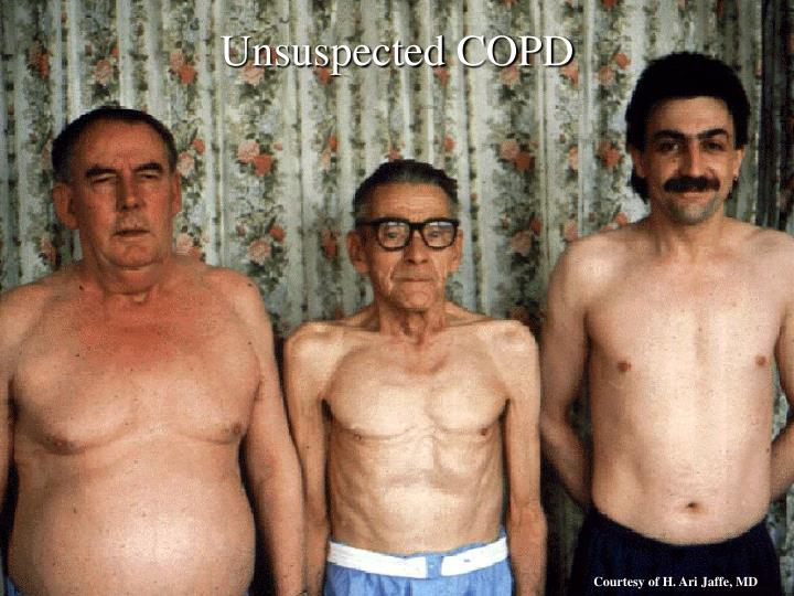 Unsuspected COPD