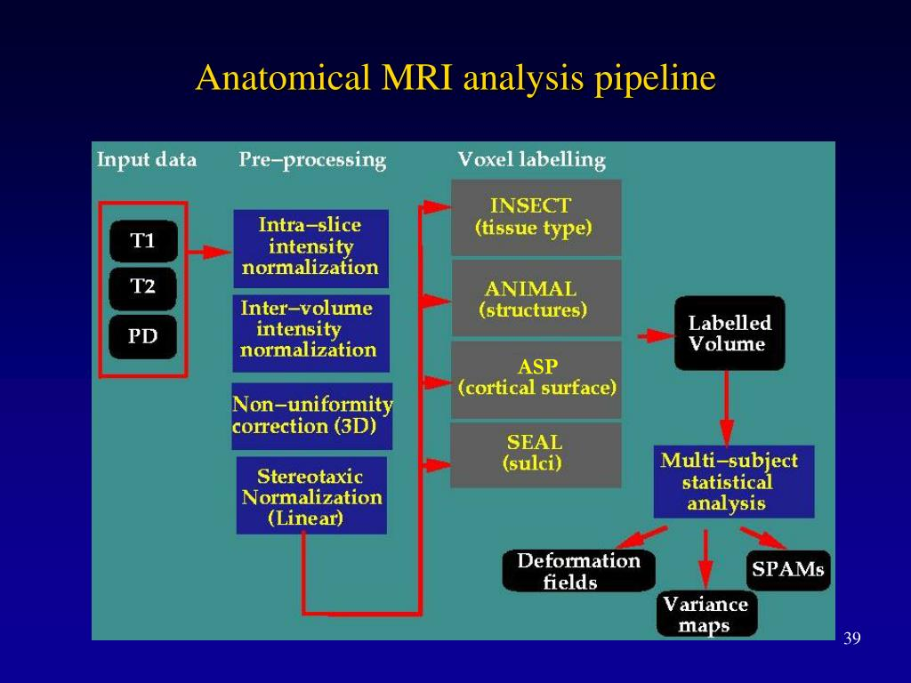 Anatomical MRI analysis pipeline