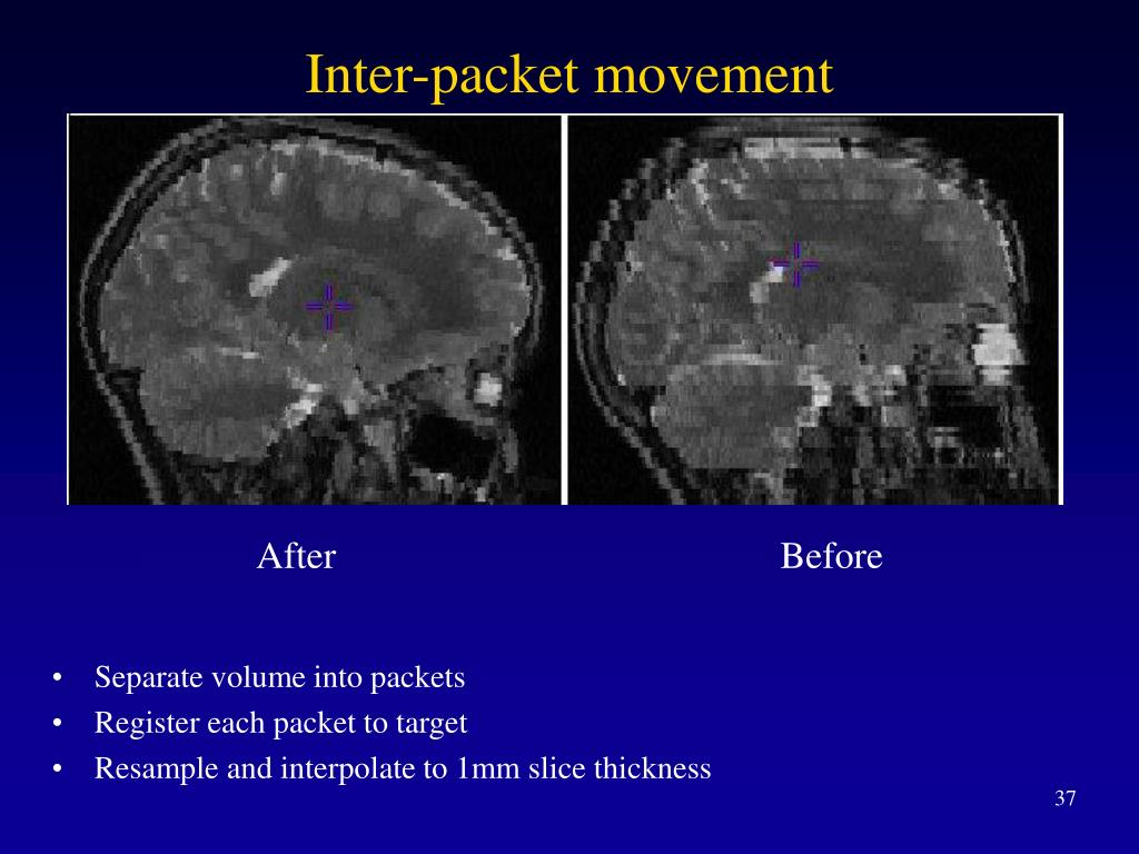 Inter-packet movement