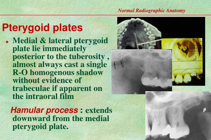 PPT - Normal Radiographic Anatomy- Based on Intraoral ...