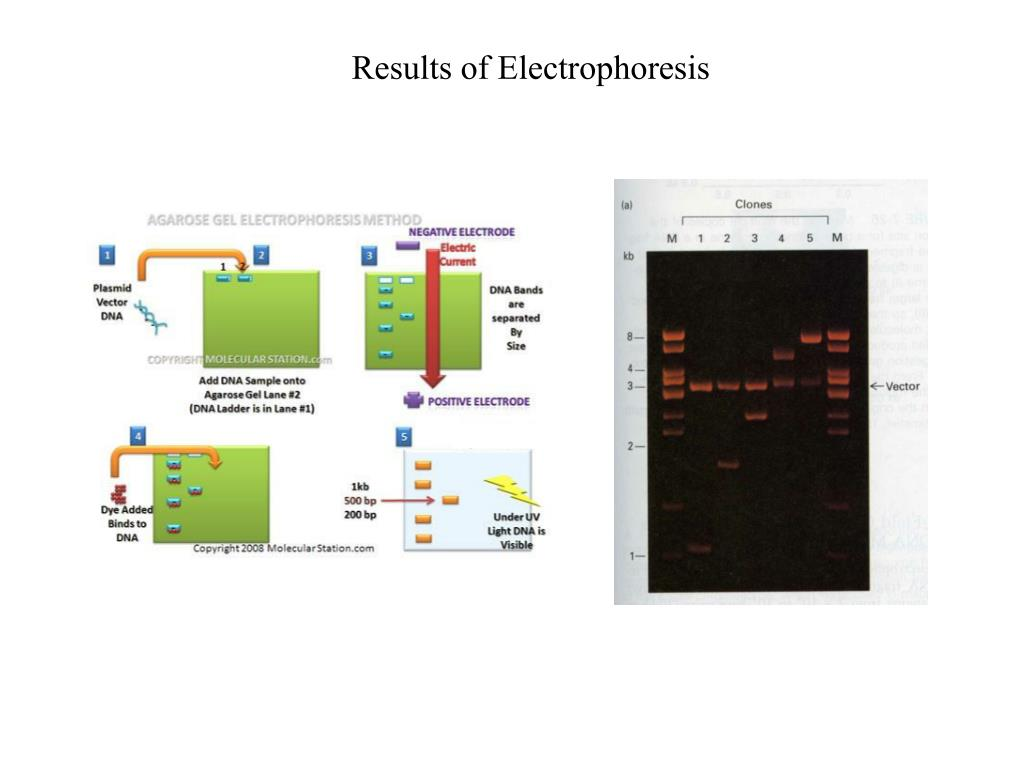 Results of Electrophoresis