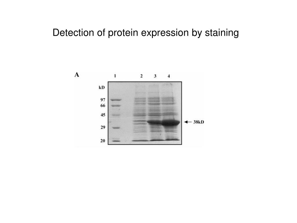 Detection of protein expression by staining