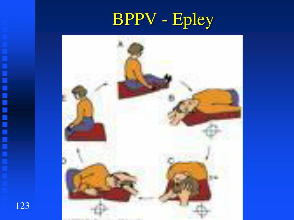 BPPV -