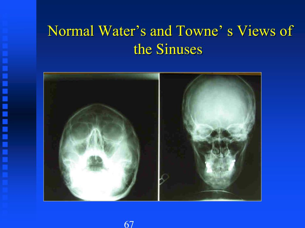 Normal Water's and Towne' s Views of the Sinuses