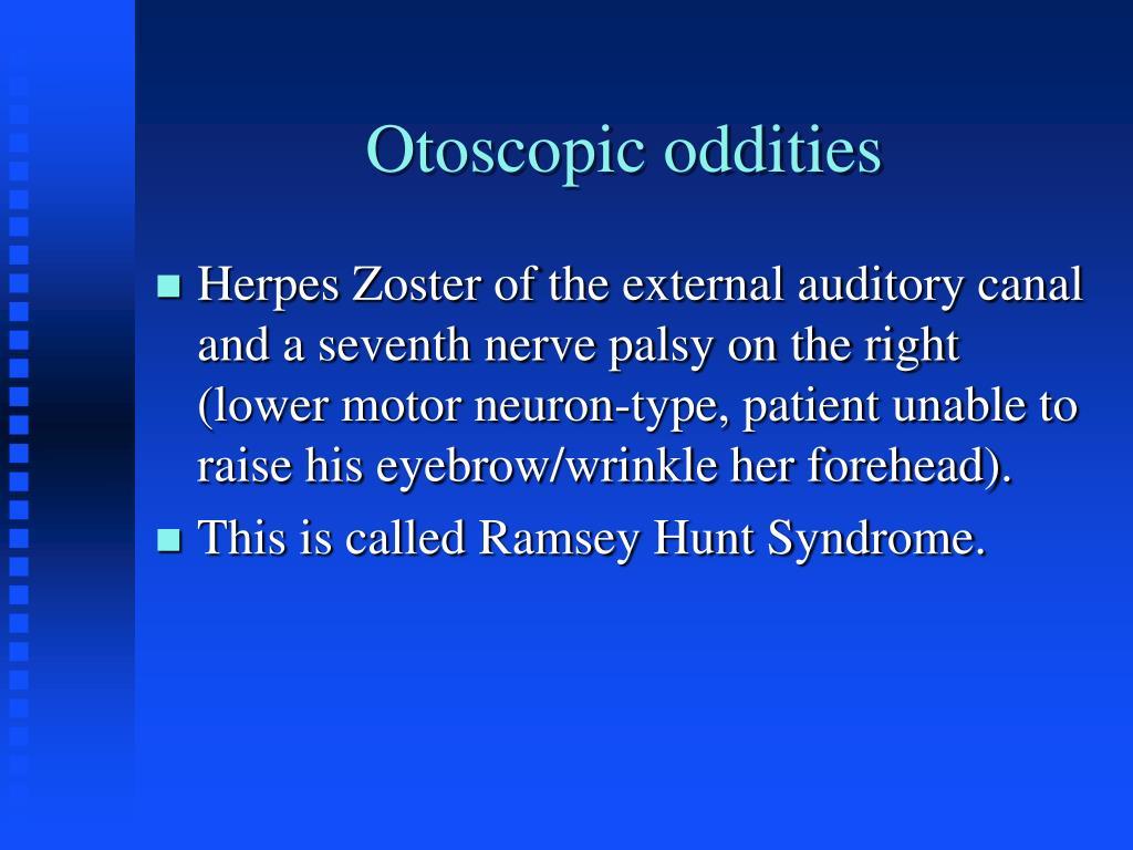 Otoscopic oddities