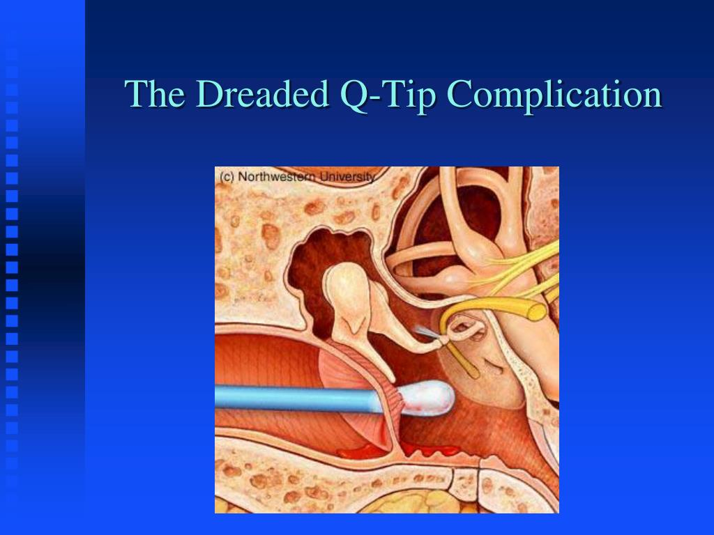 The Dreaded Q-Tip Complication