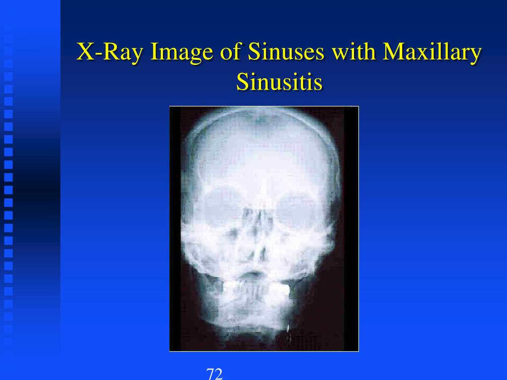 X-Ray Image of Sinuses with Maxillary Sinusitis