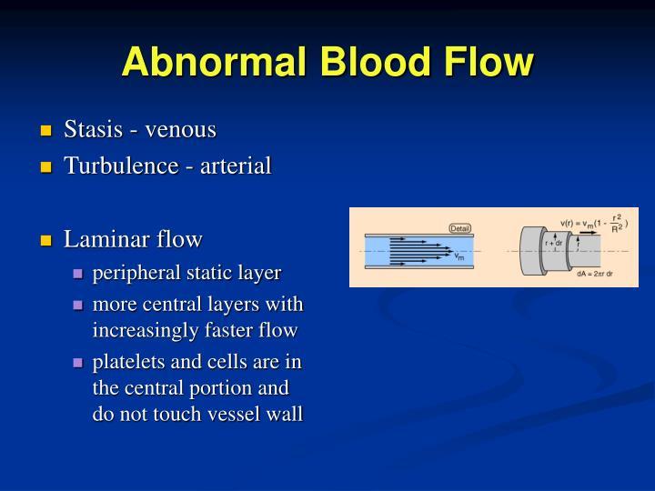 Abnormal Blood Flow