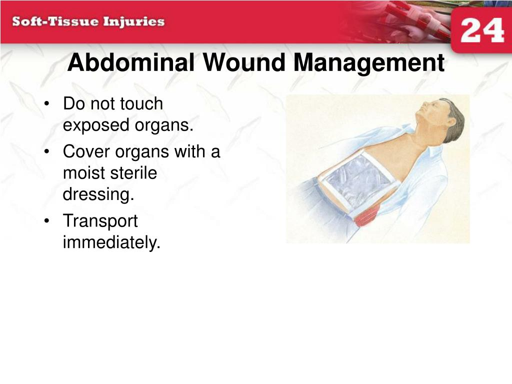 Abdominal Wound Management
