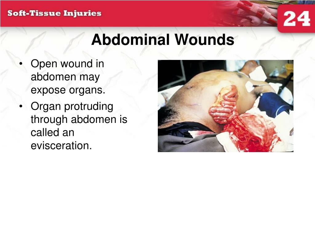 Abdominal Wounds