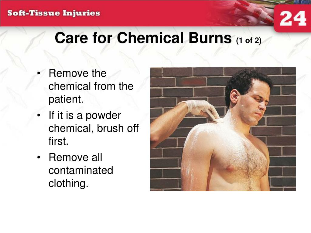 Care for Chemical Burns