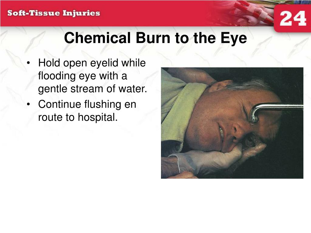Chemical Burn to the Eye