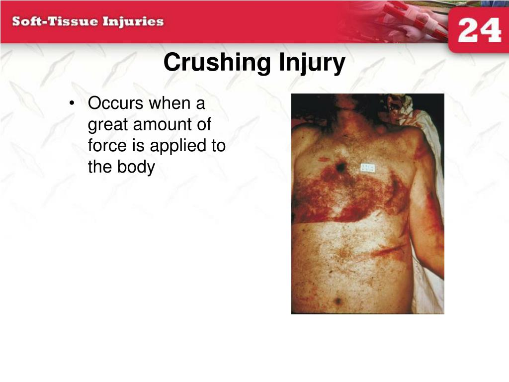 Crushing Injury