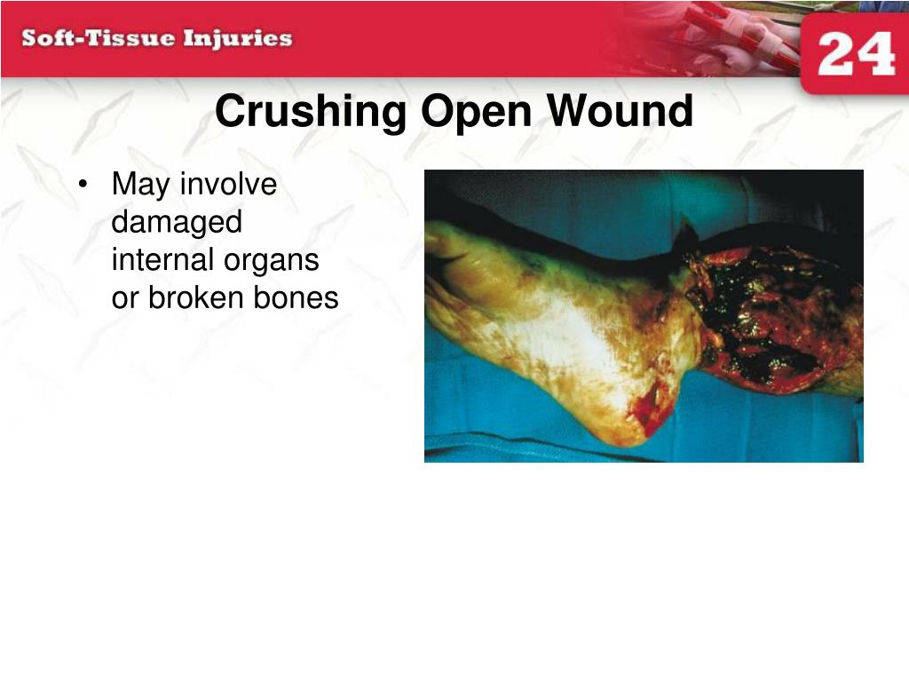 Crushing Open Wound