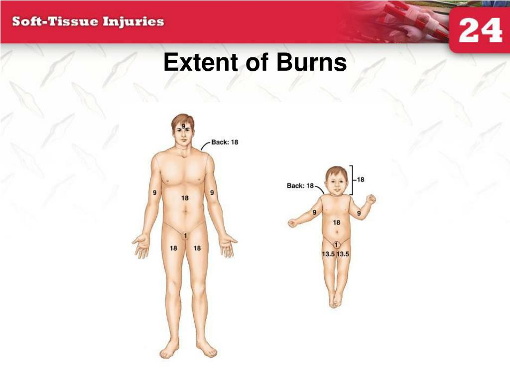 Extent of Burns
