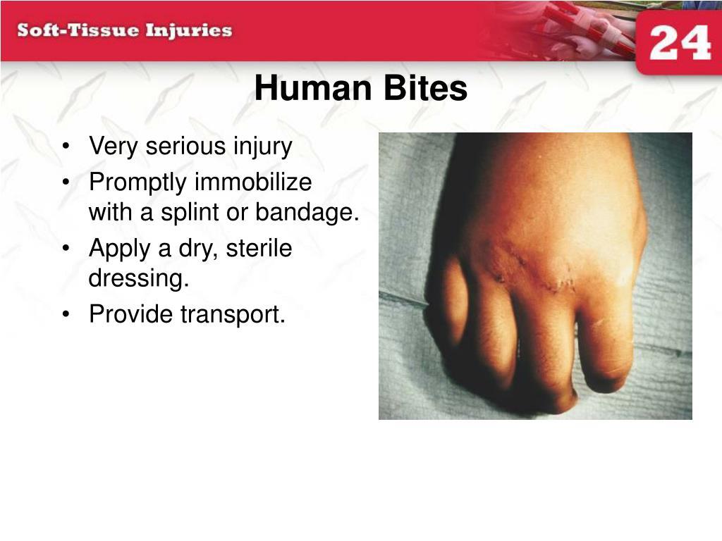 Human Bites