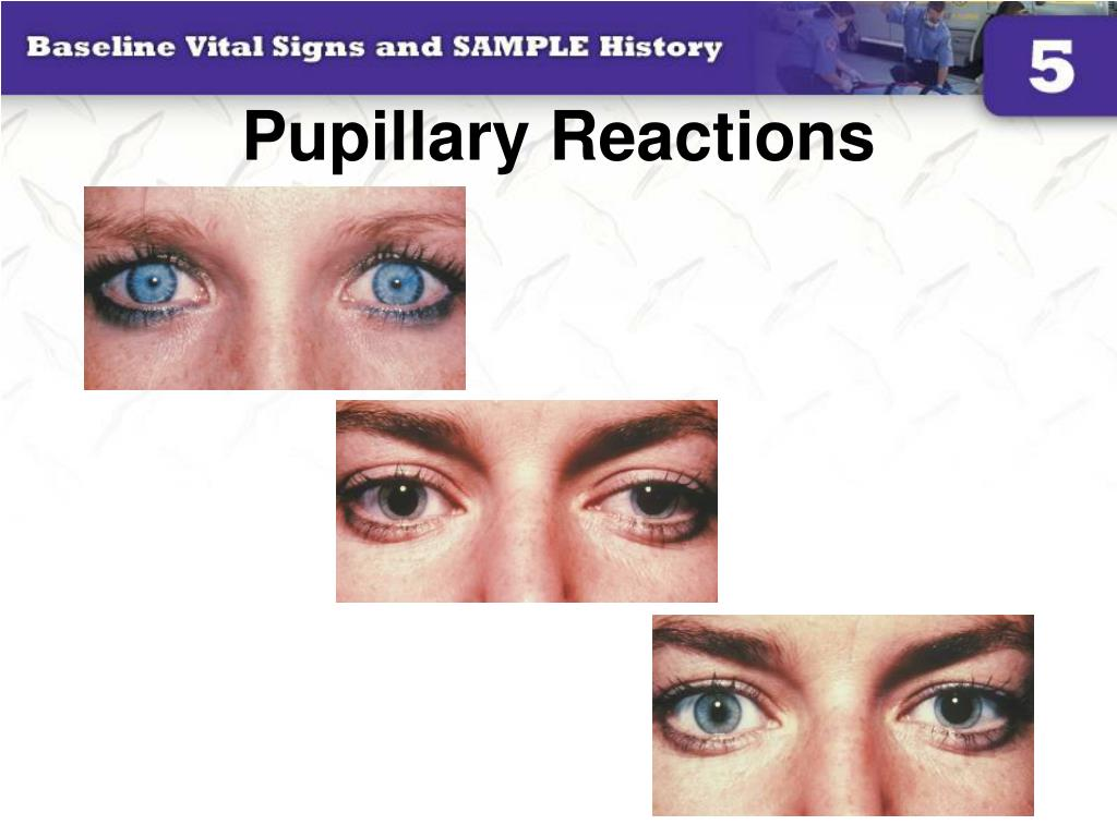 Pupillary Reactions