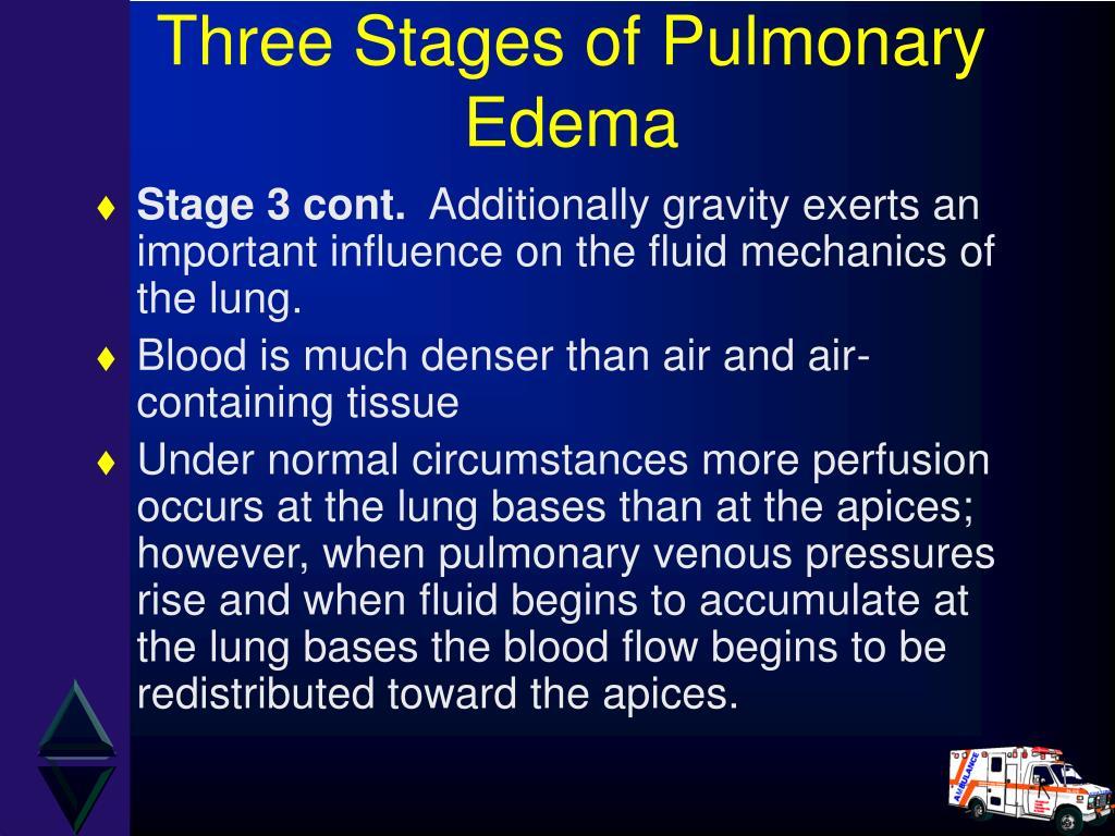 Three Stages of Pulmonary Edema