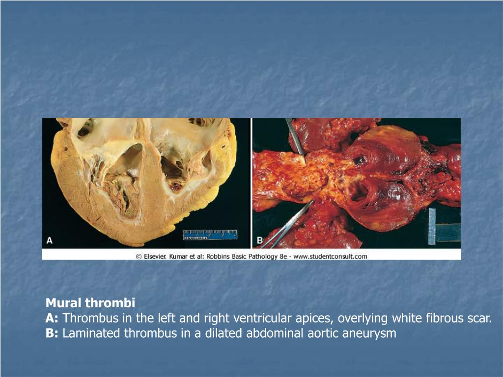 Ppt disorders of vascular flow edema congestion for Mural thrombi