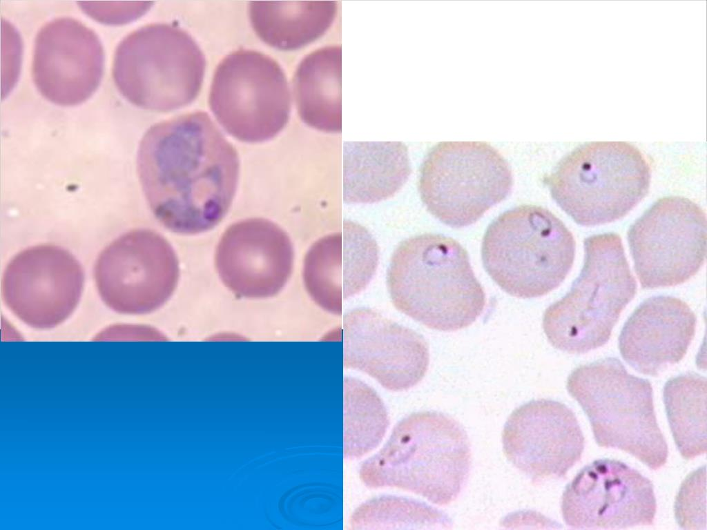 Plasmodium in red blood cell
