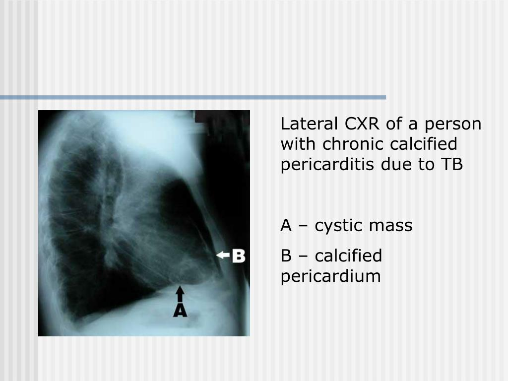 Lateral CXR of a person with chronic calcified pericarditis due to TB