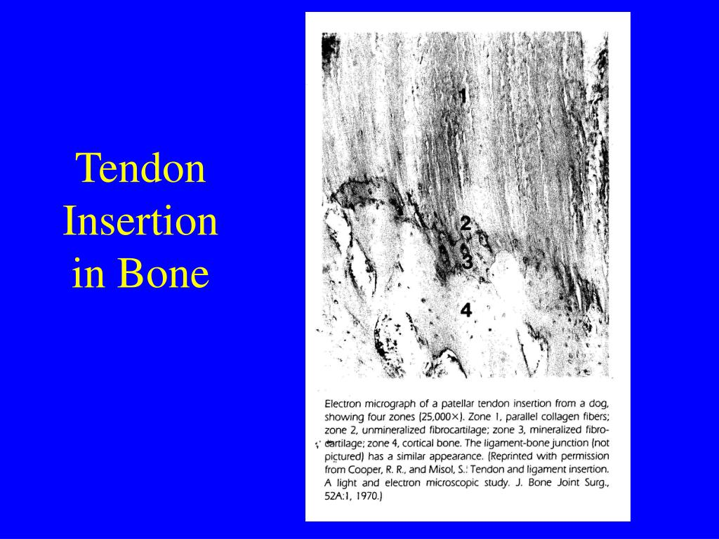 Tendon Insertion in Bone