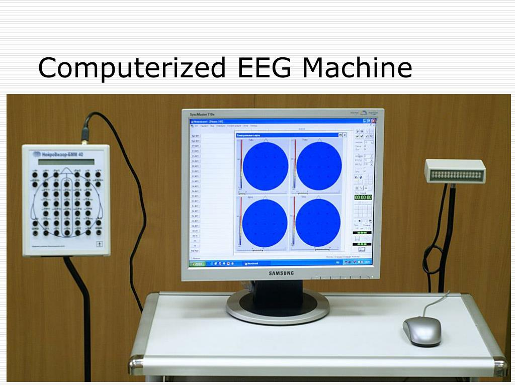 what is an eeg machine